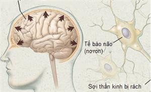 Chấn thương đầu (Chấn thương sọ não)
