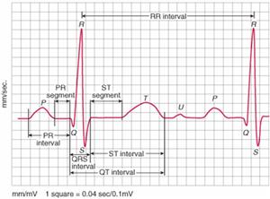 Đau thắt ngực không ổn định và nhồi máu cơ tim không có ST chênh lên