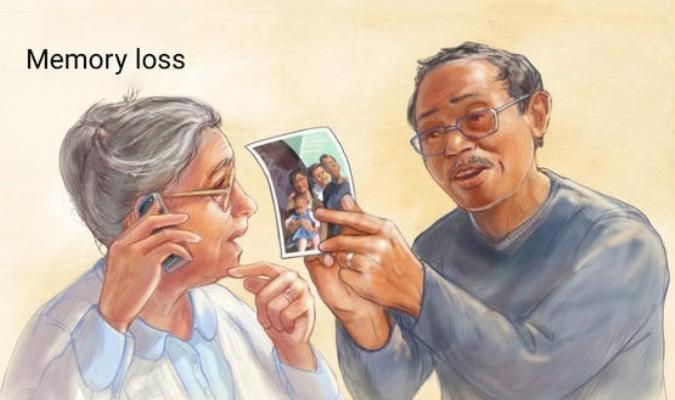 Kết quả hình ảnh cho Alzheimer daikynguyen
