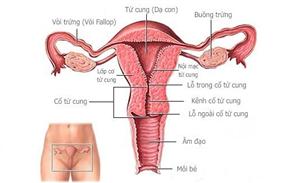 Lạc nội mạc tử cung