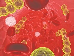 Nhiễm khuẩn huyết