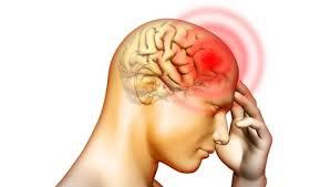 4 khuyến cáo phòng chống bệnh viêm màng não do mô cầu